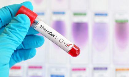 Coronavirus, 6.684 positivi: la situazione a Cremona e provincia venerdì 17 luglio 2020