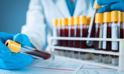 Test sierologici, continuano gli screening: gli ultimi dati di Ats Val Padana